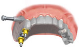 Moderne Zahnmedizin